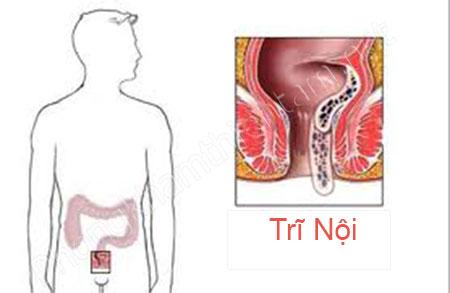 Bệnh trĩ nội dễ dàng chữa trị ở cấp độ nhẹ