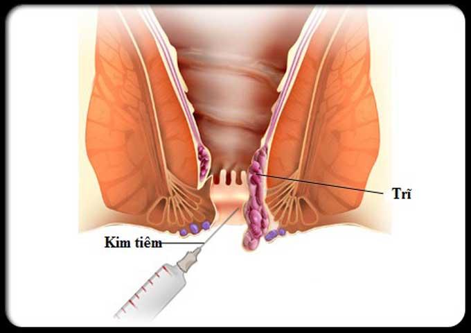 Kỹ thuật chích xơ hóa búi trĩ nội