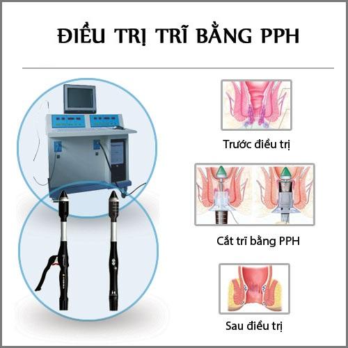 PPH - kỹ thuật xâm lấn tối thiểu điều trị bệnh trĩ phổ biến hiện nay