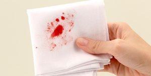 Đại tiện ra máu - dấu hiệu sớm của bệnh trĩ nội