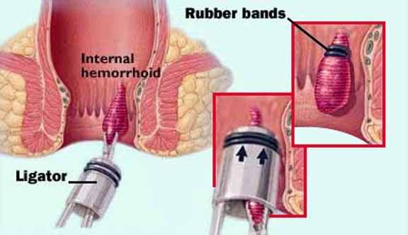 Thắt búi trĩ - thủ thuật chữa bệnh trĩ nội độ 2 hiệu quả