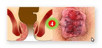 Trĩ nội độ 4 - giai đoạn cuối cùng của bệnh trĩ nội