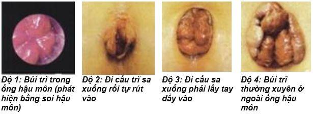 Búi trĩ sa hẳn ra bên ngoài - triệu chứng bệnh trĩ nội độ 4