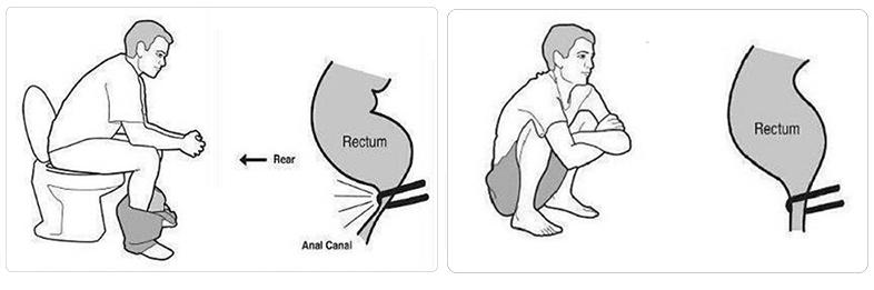 Đi cầu đúng cách giúp việc đại tiện dễ dàng và ngừa bệnh trĩ hữu hiệu