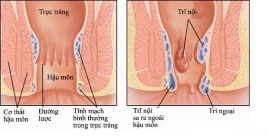 Bệnh trĩ ngoại: Các búi trĩ hình thành dưới đường lược