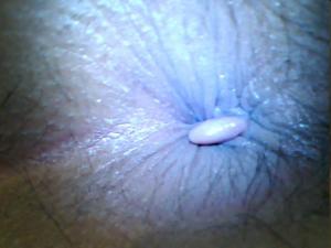 Hình ảnh của bệnh trĩ ngoại ở giai đoạn đầu