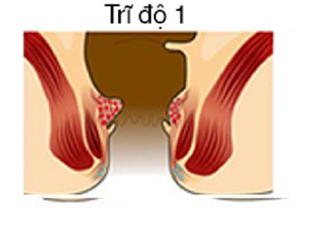 Hình ảnh trĩ nội độ 1: khó nhận biết do các búi trĩ nằm trong ống hậu môn