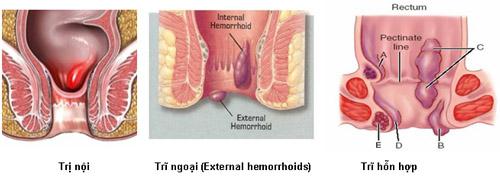 Hình ảnh 3 loại bệnh trĩ thường gặp