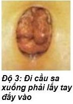 Hình ảnh bệnh trĩ nội độ 3