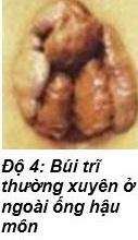 Hình ảnh của bệnh trĩ nội độ 4