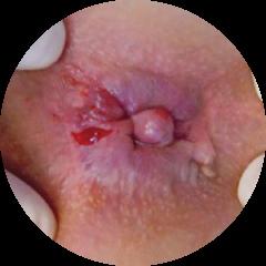 Bệnh trĩ ngoại độ nhẹ có thể tự chữa khỏi tại nhà