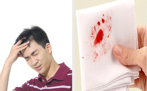 Chảy máu khi đại tiện là triệu chứng bệnh nứt kẽ hậu môn điển hình