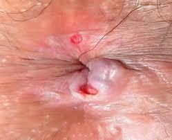 Bằng mắt thường có thể quan sát thấy các lỗ rò ở hậu môn