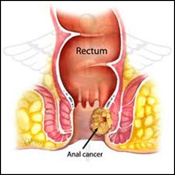 Khó tránh khỏi nguy cơ mắc ung thư hậu môn - trực tràng khi bị rò hậu môn