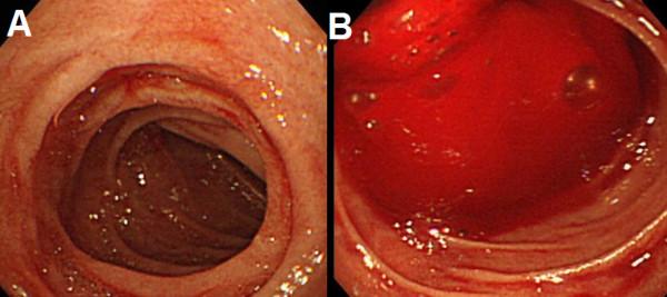 Xuất huyết tiêu hóa là hiện tượng máu thoát ra khỏi lòng mạch chảy vào ống tiêu hoá