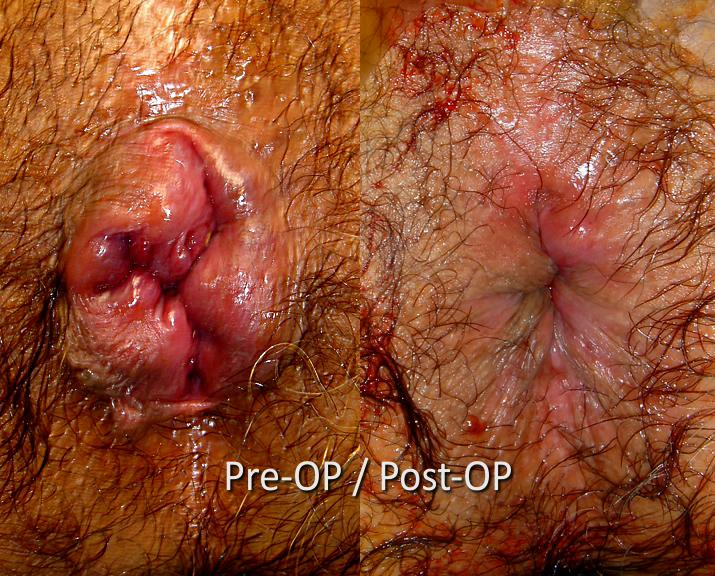 Trước và sau phẫu thuật trĩ bằng phương pháp THD