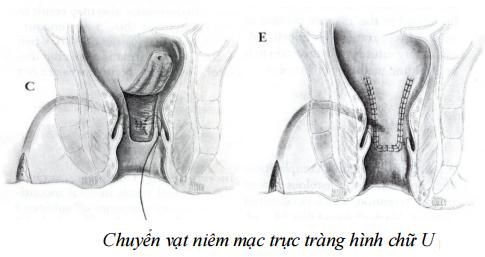 phuong-phap-phau-thuat-mo-ro-hau-mon2
