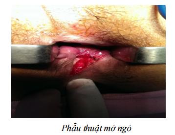 phuong-phap-phau-thuat-mo-ro-hau-mon3