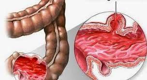 Viêm loét đại trực tràng chảy máu cũng là nguyên nhân gây đại tiện ra máu