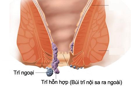Bệnh trĩ hỗn hợp kết hợp đặc điểm trĩ nội và trĩ ngoại