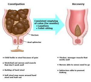 Có thể bị hẹp hậu môn sau phẫu thuật trĩ, do đó người bệnh cần cân nhắc kĩ trước khi thực hiện