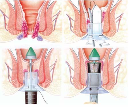 Nhược điểm lớn của phương pháp Longo chính là dễ gây hẹp hậu môn sau phẫu thuật