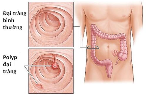 Polyp đại tràng, trực tràng có thể là nguyên nhân gây đi cầu ra máu tươi không gây đau