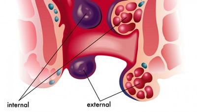 Trĩ ngoại tắc mạch là hiện tượng xuất hiện các cục máu đông ở hậu môn gây đau nhức