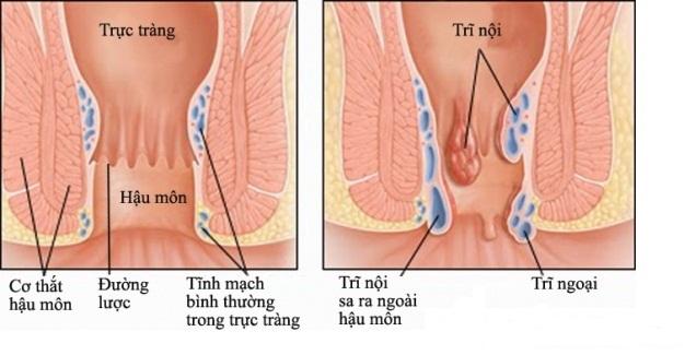 Bệnh trĩ nội hình thành bên trên đường lược nằm bên trong ống hậu môn