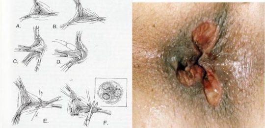 Kết quả cắt trĩ theo phương pháp Milligan Morgan