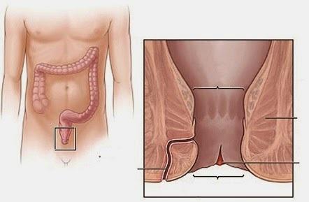 Nứt kẽ hậu môn và viêm ống hậu môn gây đi ngoài ra máu tươi, có thể kèm đau bụng dưới