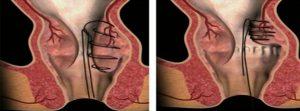 Khâu treo trĩ bằng tay là phương pháp chữa trĩ cải biên của phương pháp Longo