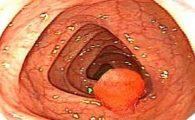 Polyp hậu môn là nguyên nhân gây ung thư hậu môn phổ biến