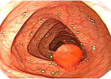 Bệnh Polyp hậu môn: Nguyên nhân, triệu chứng và cách điều trị
