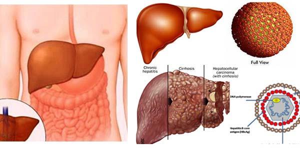 Biến chứng xơ gan gây bệnh trĩ