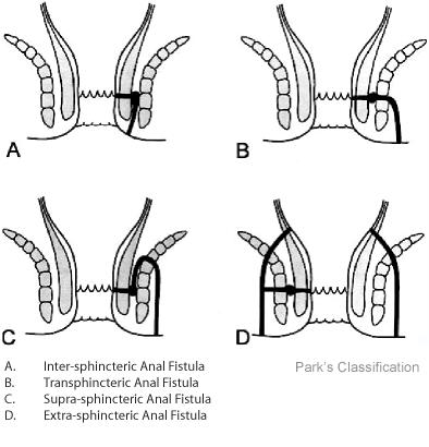 Hình ảnh phân loại bệnh rò hậu môn