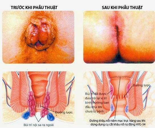 Khi bệnh trĩ nặng, điều trị nội khoa không có hiệu quả và có biến chứng thì cần phẫu thuật cắt trĩ