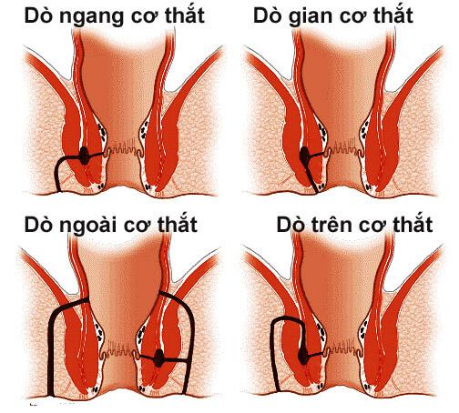 bệnh rò hậu môn xuyên cơ thắt là gì