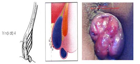 trĩ tắc mạch - biến chứng thường gặp của bệnh trĩ