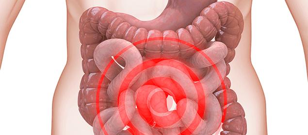 Bị tiêu chảy ra máu có thể do bệnh hội chứng ruột kích thích