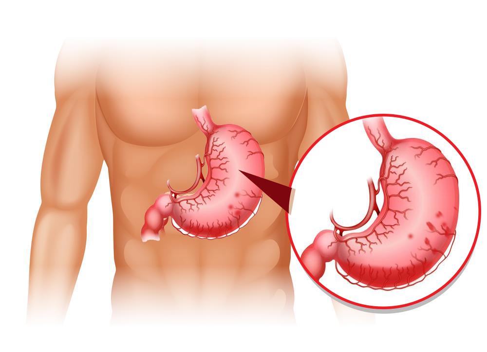 Đi cầu ra máu cục do xuất huyết dạ dày
